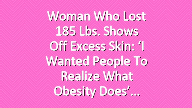 Woman Who Lost 185 Lbs. Shows Off Excess Skin: 'I Wanted People to Realize What Obesity Does'
